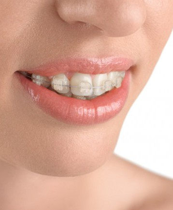 Orthodontics | Stratford Dental Center